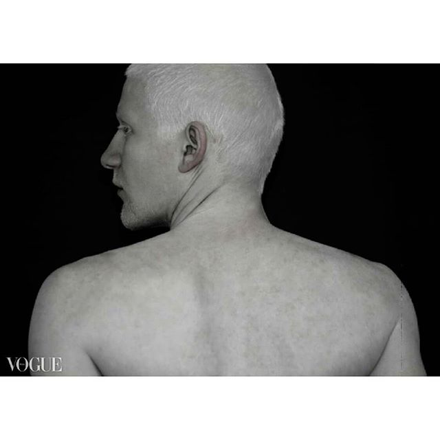 portraitphotography photooftheday camera photoshoot sonyphotofestival vogue nocturne artistsoninstagram magazine vogueitalia portrait photography shadow artist canon artistic albino art present albinomodel editorial post fineart beautiful